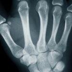hand en pols anatomie van gewrichten, pezen en botten