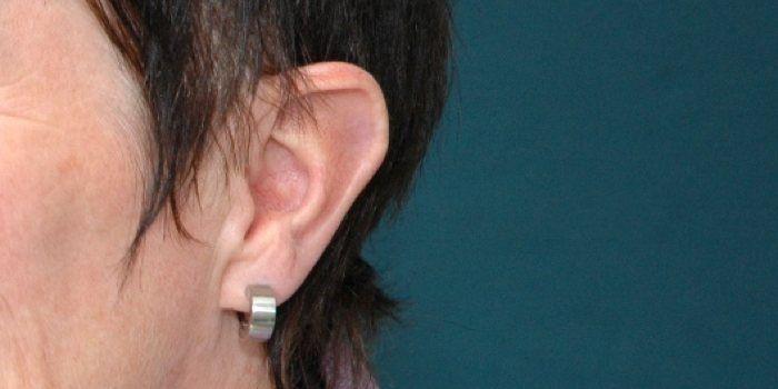 letselschade gehoorschade