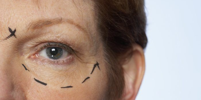 Letselschade mislukte cosmetische ingreep